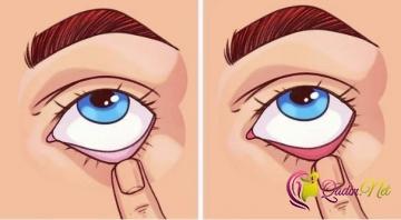 Bədənizi tanımağa kömək edən tibbi test